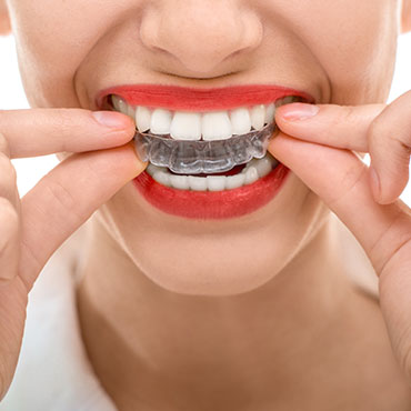 Clear Adult Braces